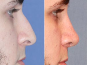 Rinoplastia-1-Reseccion-Giba-Nasal-