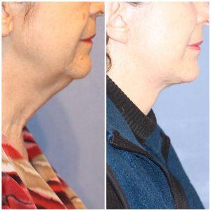 Lifting Cervicofacial (Cara y Cuello)  + Lipoinyección Facial