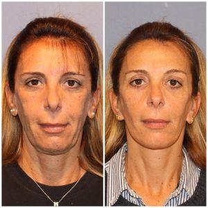 Lifting Cervicofacial (Cara y Cuello) + Blefaroplastia Superior e Inferior  Bilateral