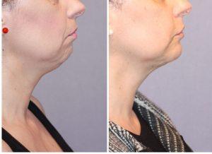 Mentoplastia de Aumento + Liposucción de cuello (papada)