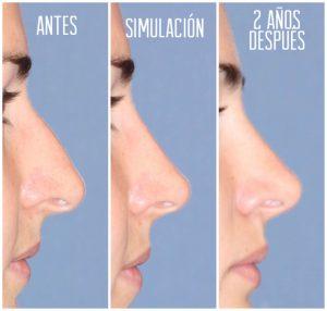 Fotos Estudio Facial – Resultado