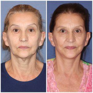 Lifting Cervicofacial (Cara y Cuello) + Blefaroplastía Superior e Inferior  Bilateral